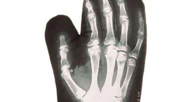 Варежка-прихватка с рентгеновским снимком ладони